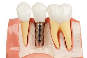 Dental Implant Cost i Sydney