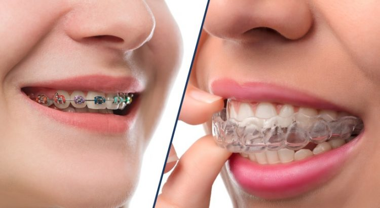 The best in orthodontic services in Sydney