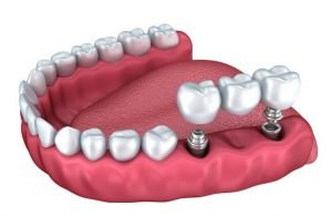 The best teeth replacement services in Sydney